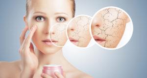 Atopowe Zapalenie Skóry – jak łagodzić objawy